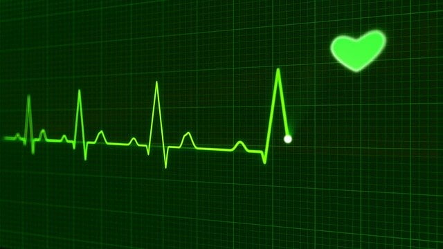tracé des battement du coeur